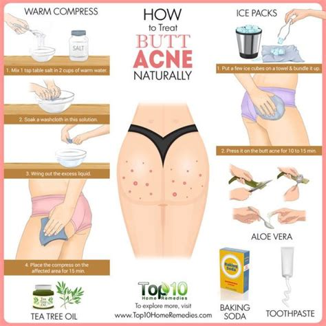 how to treat acne naturally top 10 home remedies