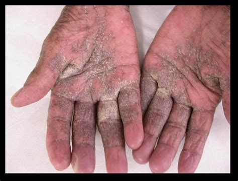 hot shower scabies 16 best images about what is scabies how do you get rid