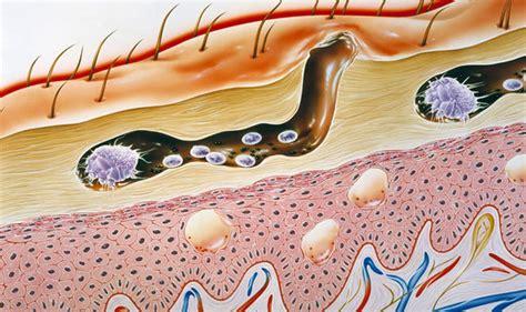 scabies rash  symptoms   skin mites  treatment  cream  expresscouk