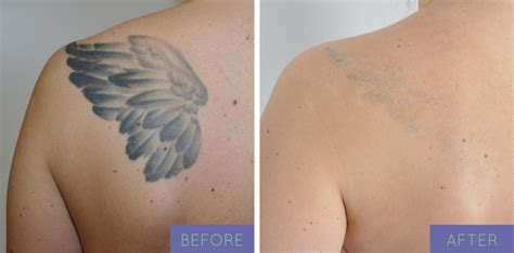 before and after tattoos bare body shop laser tattoo removal in ny