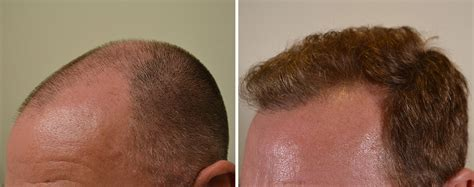 pictures of 1000 hair replacement grafts fue hair transplant 1000 plus finasteride 1mg daily hair