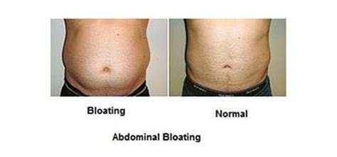 what is bloat stomach bloating abdominal bloating treatment