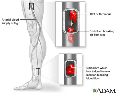 arterial embolism: medlineplus medical encyclopedia