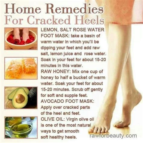home remedies for cracked heels pedicure