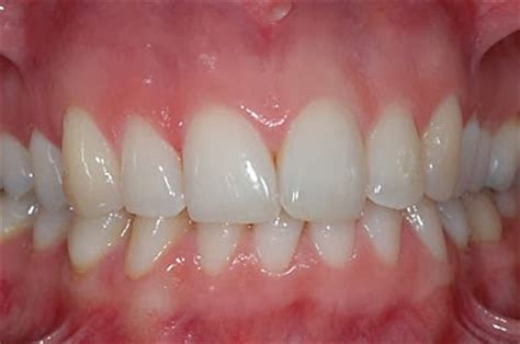 what color should gums be ask dentistmy 牙牙学医 ask dentist牙牙学医 what is gum disease