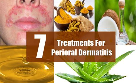 7 treatments for perioral dermatitis how to treat