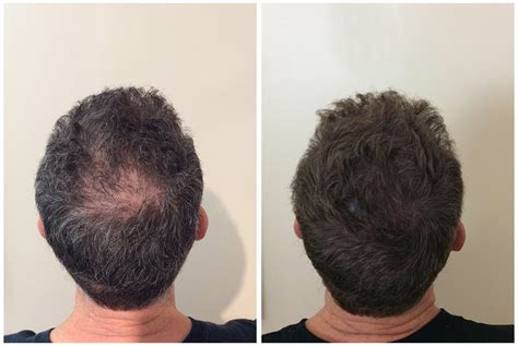 scalp micropigmentation to make hair ticker pictures scalp micro pigmentation results elite institute of