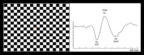checkerboard pattern reversal stimulation vep drack lab