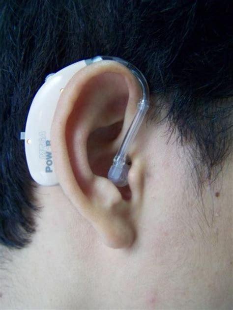 Alat Bantu Dengar Bte alat bantu dengar alat bantu dengar