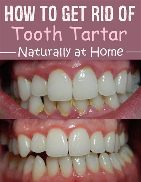 Of Tartar Detox by How To Get Rid Of Tooth Tartar Naturally At Home