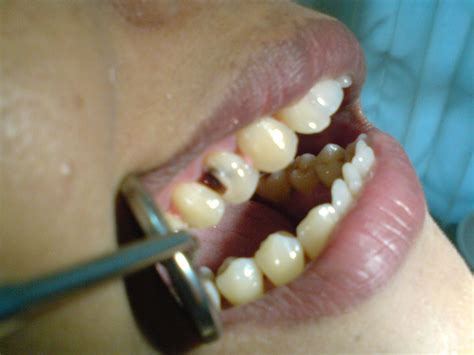 Bor Gigi sakit karena gigi berlubang berikut solusi pilihannya