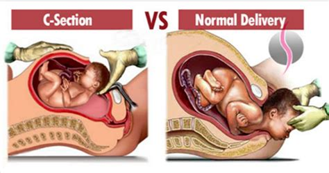 advantages of normal delivery over c section facts about normal vs c section delivery all women must