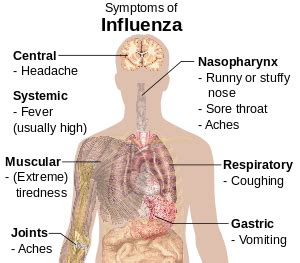 influenza wikipedia