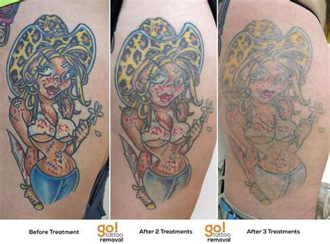 tattoo fading over time 915 best removal in progress images on