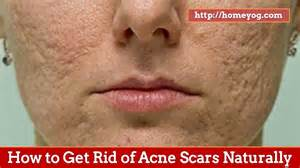how to get rid of acne home remedies how to get rid of acne scars naturally top 10 home