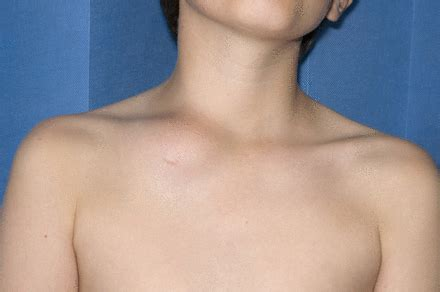 clavicular swelling—classic presentation of chronic non