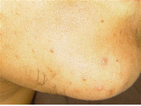 excess pubic hair unwanted facial hair hirsutism