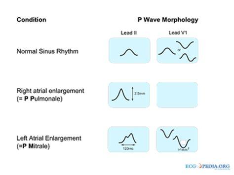 ecg waveforms | ecg techniques and recognition