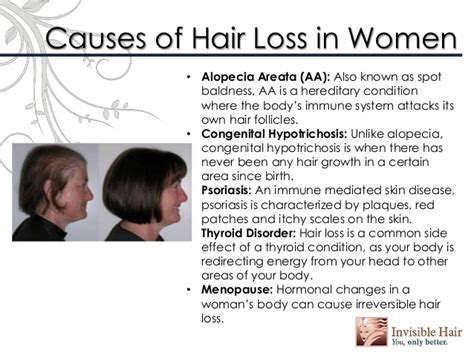 what causes hair loss in young women under 40 female genetic hair loss solutions