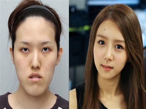 Plastik Surgery Di Korea Korean Idols Without Plastic Surgery Korean Idol Plastic