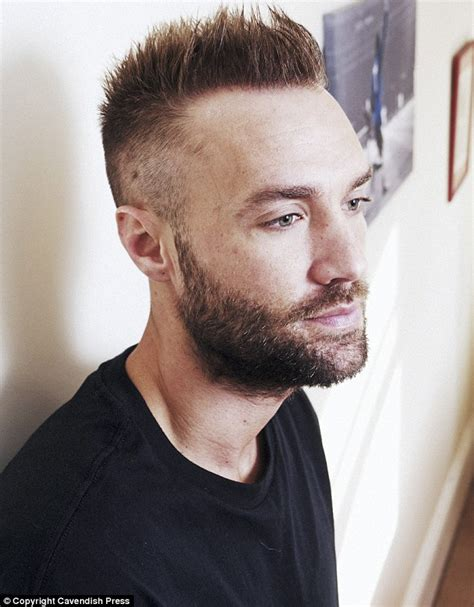 akshay kumar hair replacements calum best has second hair transplant his hair clinic