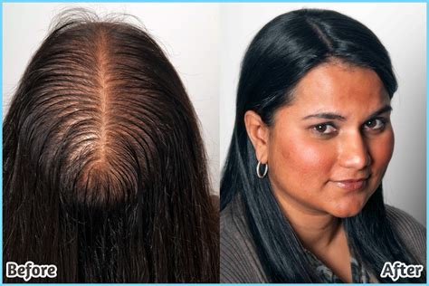 hairstyles  older women  thinning hair hairstyle