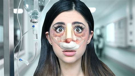 Did Get A Nose 2 by Nose Wrong Surgery Simulator