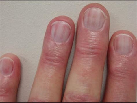 red nail beds colour of your nails say a lot about your health boldsky com