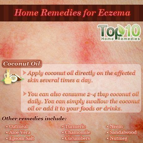 Home Remedy For Eczema by Best 25 Home Remedies For Eczema Ideas On