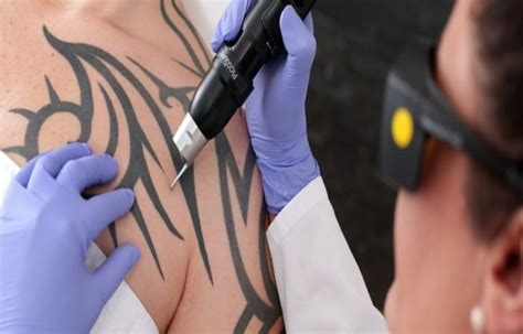 can you get laser tattoo removal while breastfeeding all you need to about laser removal