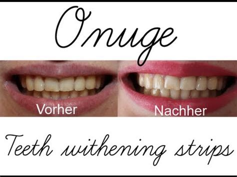 onuge teeth whitening strips livetest review youtube