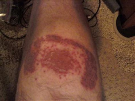 bandaide adhesive allergy rash