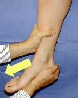 low ankle sprain foot ankle orthobullets