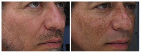 e one ipl session before and after on man and woman face ipl boca raton s hottest new skin treatment