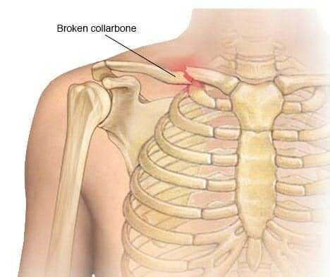 clavicle pain bench press clavicle pain bing images