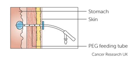 drip or tube feeding | cancer research uk