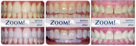 cochran dental care cutting edge advances   dental