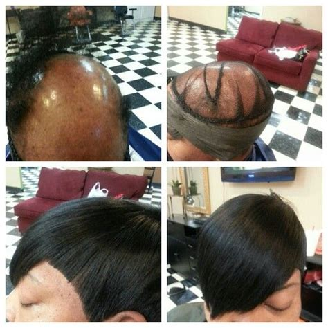 black women balding crown hair piece balding from alopecia full crown sew in sew in for black