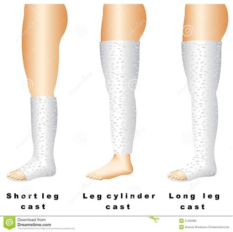 Or Casts Leg Casts Stock Vector Image Of Equipment Standing 27400965