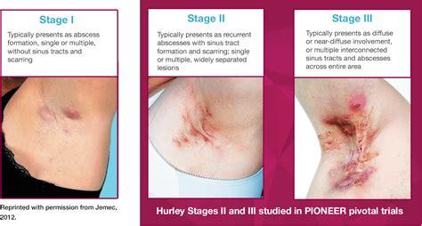 To Hurley 1 ps psa hidradenitis suppurativa disease info