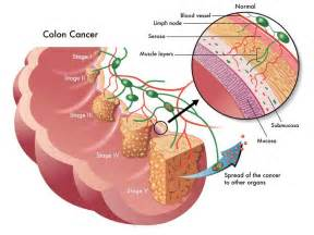 color cancer here is how this 70 year naturally cured his late