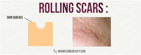i got rid of all my deep rolling acne scars with msm cream how to get rid of acne scars fast the 20 best treatments