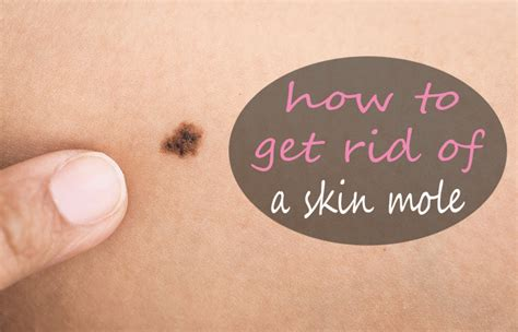 how to get rid of moles in the backyard how to get rid of a skin mole naturally without surgery 9