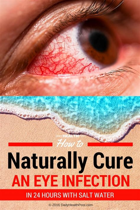 how to treat eye infection at home how to naturally cure an eye infection in 24 hours with salt water