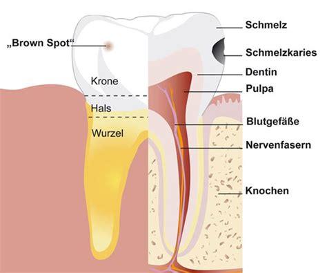 flüge in die usa wann buchen f 252 llungen warum n 246 tig zahnimplantate oralchirurgie