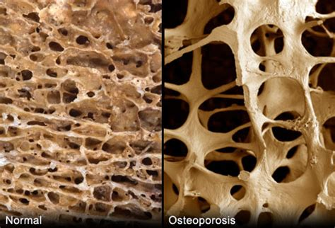 osteoporosis guide in pictures: brittle bones, treatments