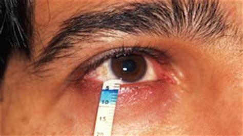 test di schirmer test di schirmer per diagnosi occhio secco mod s r l