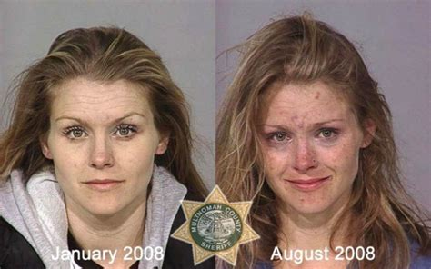 Medicine Detox Meth by The Shocking Faces Of Addiction Eye Opening Info