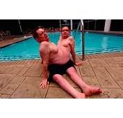 Meet Ronnie And Donnie The Oldest Conjoined Twins In History