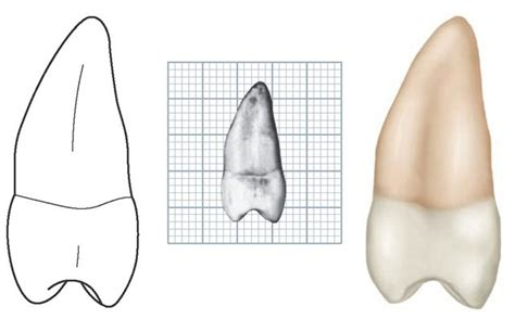 Maxillary Premolar The Permanent Maxillary Premolars Dental Anatomy